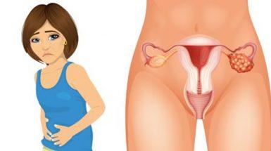 rani-simptomi-raka-jajnika